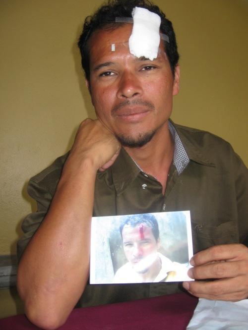 el maestro Francis Edgardo Martinez el dia despues de ser golpeado y detenido. Santa Rosa de Copan, 1 de agosto. Foto: Sandra Cuffe.
