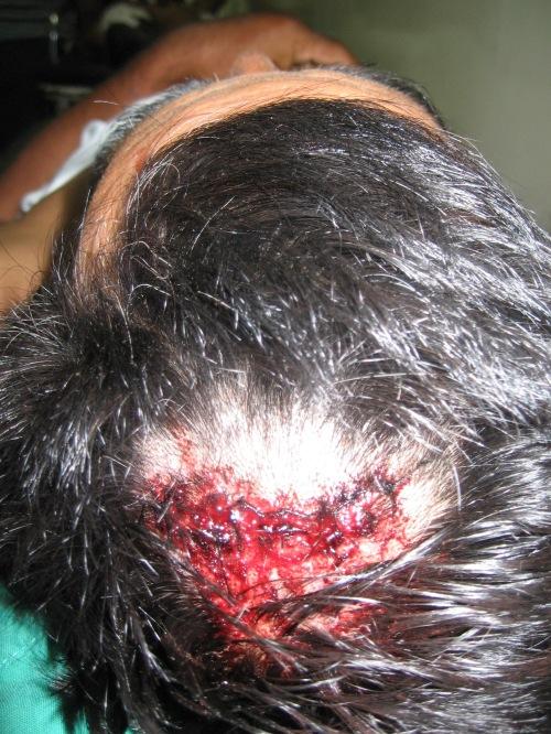 Entre las heridas por golpes esta la cabeza de Marcial Hernandez. Foto: Sandra Cuffe