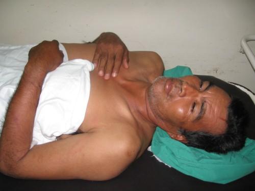 Marcial Hernandez, hospitalizado por golpes durante su detencion en Choloma, el 14 de agosto. Foto: Sandra Cuffe